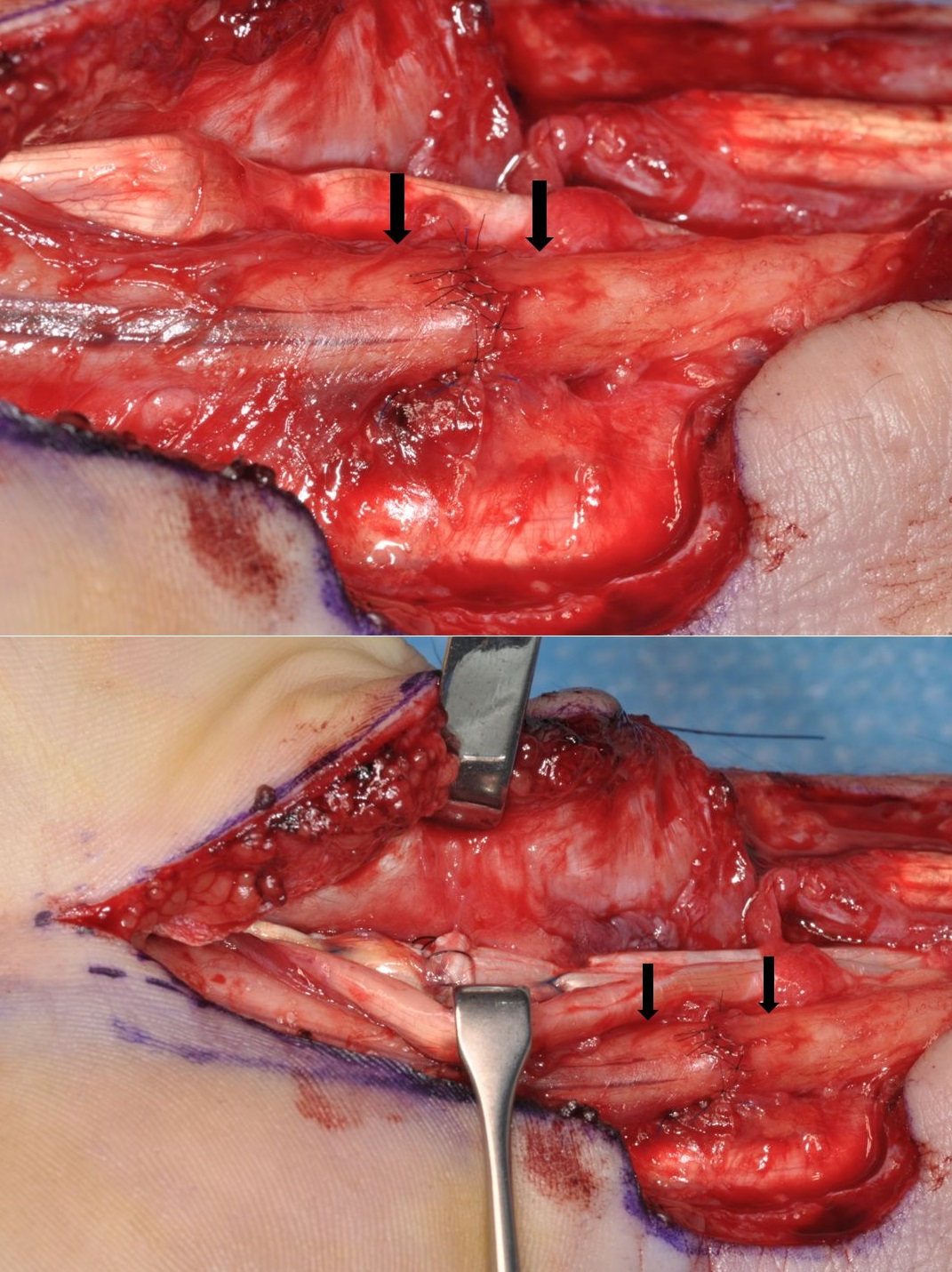 Suture repair of the median nerve at the wrist.
