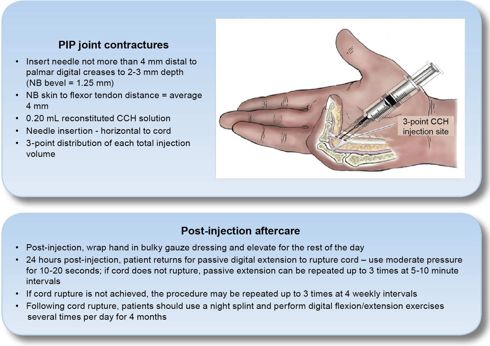 Figure 15: CCH injection technique for MP and PIP joints and suggested aftercare