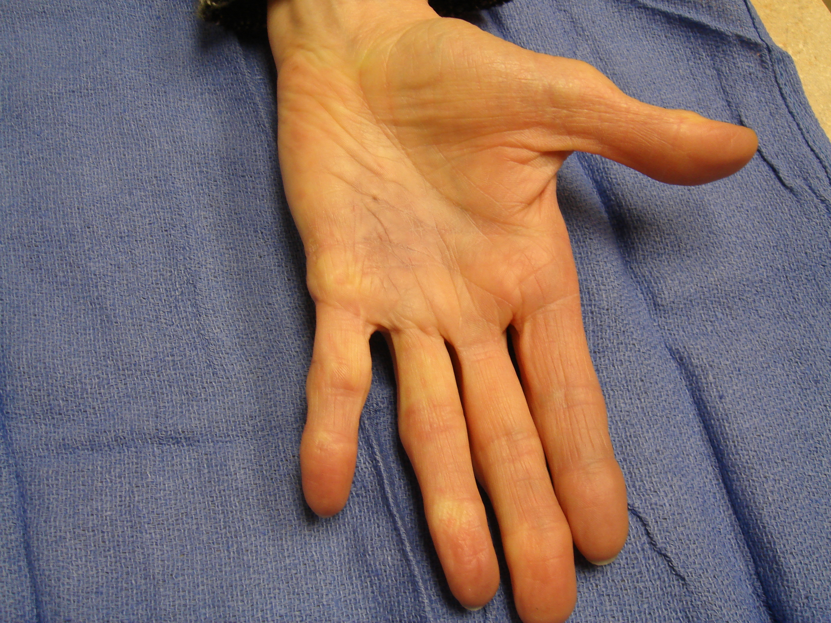 Figure 1h: These photographs illustrate the patient's hand 6 months after the second enzyme treatment cycle (for the fourth ray) and 15 months.