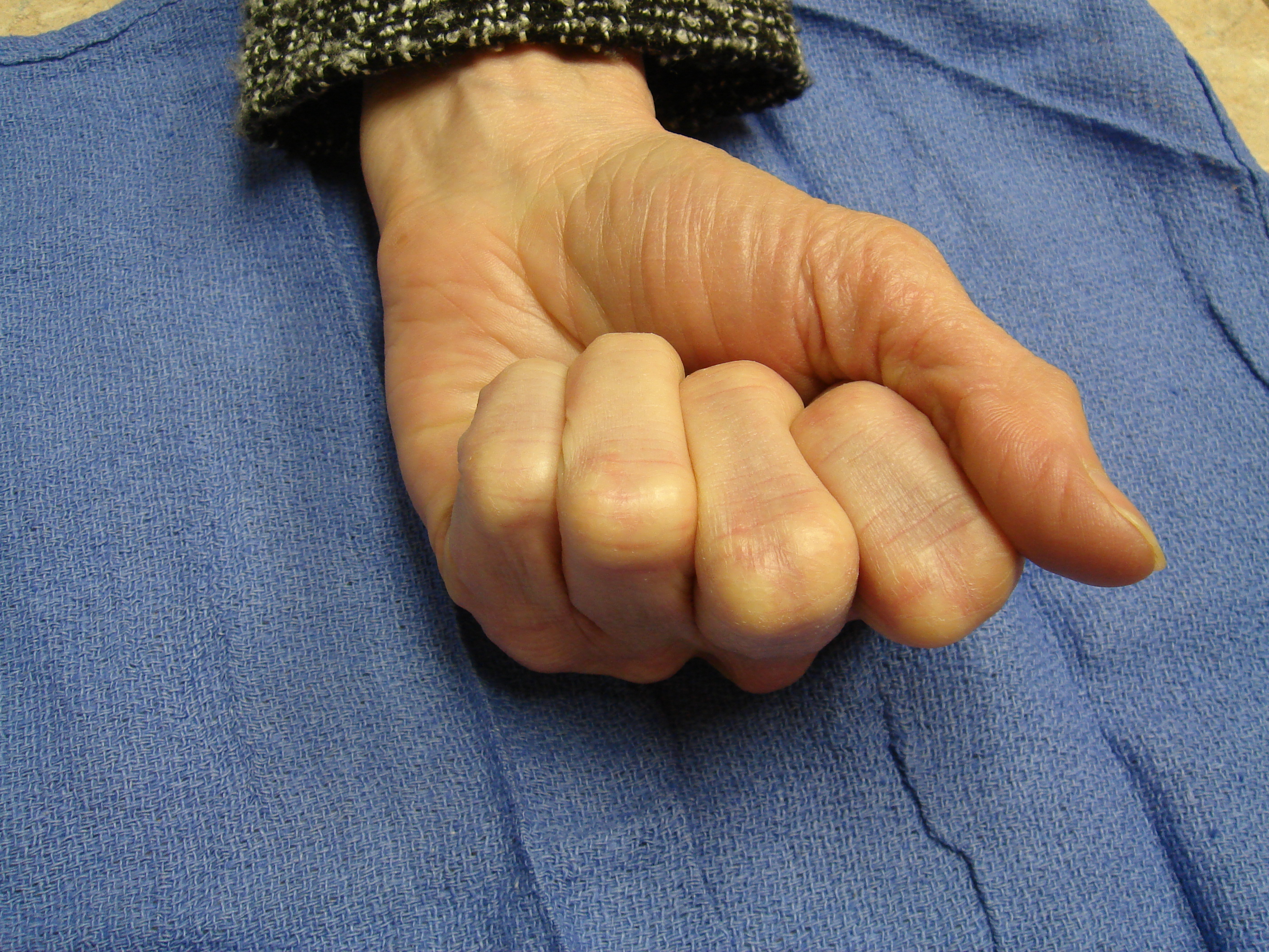 Figure 1i: These photographs illustrate the patient's hand 6 months after the second enzyme treatment cycle (for the fourth ray) and 15 months.