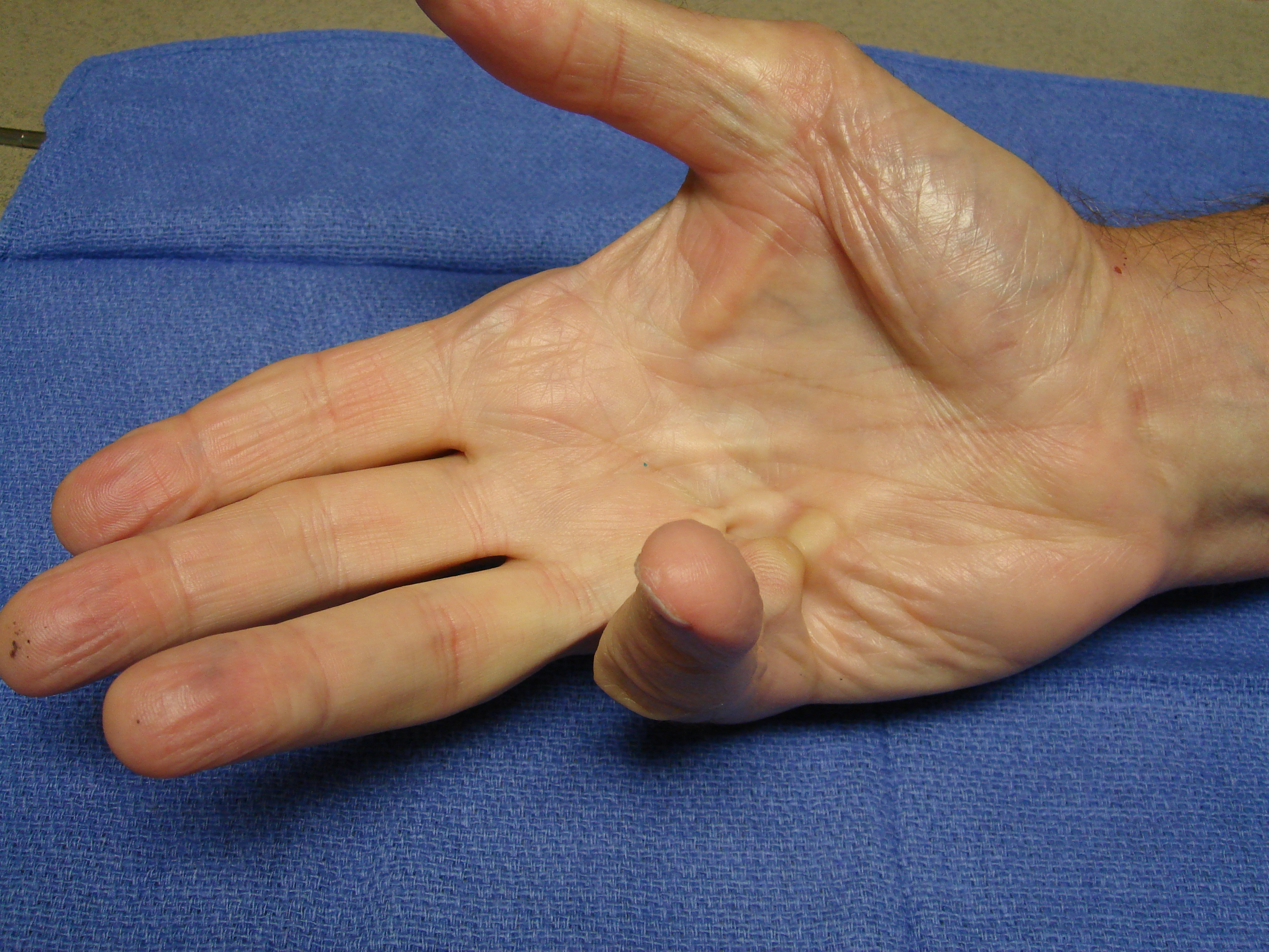 Figure 2a: This patient had a combined little finger MP and PIP contracture plus a Y-cord (natatory cord) into the ring finger.