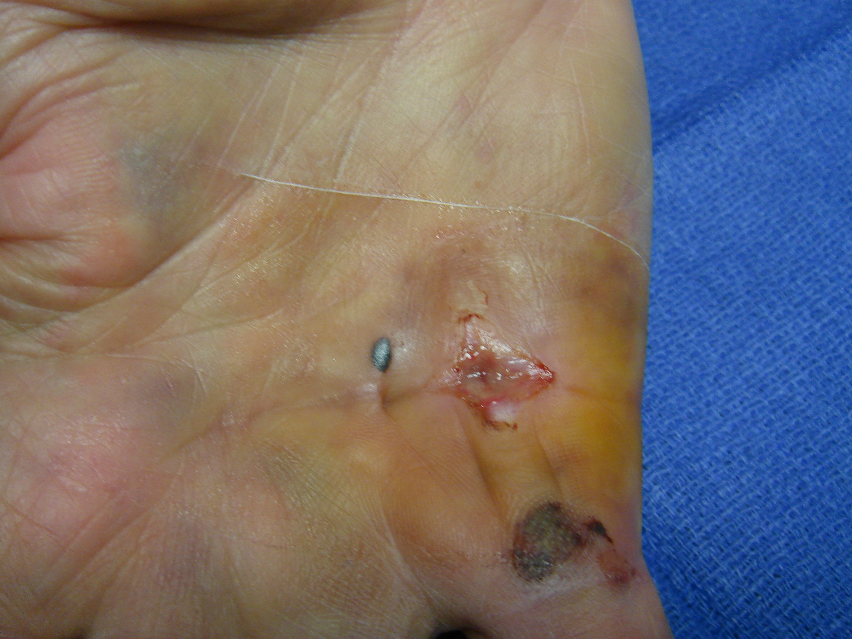 Figure 2c: These photographs illustrate the patient's hand 7 days post-enzyme injection. The custom thermoplastic night splint is shown; the palmar skin tear and MP crease bruise are healing.