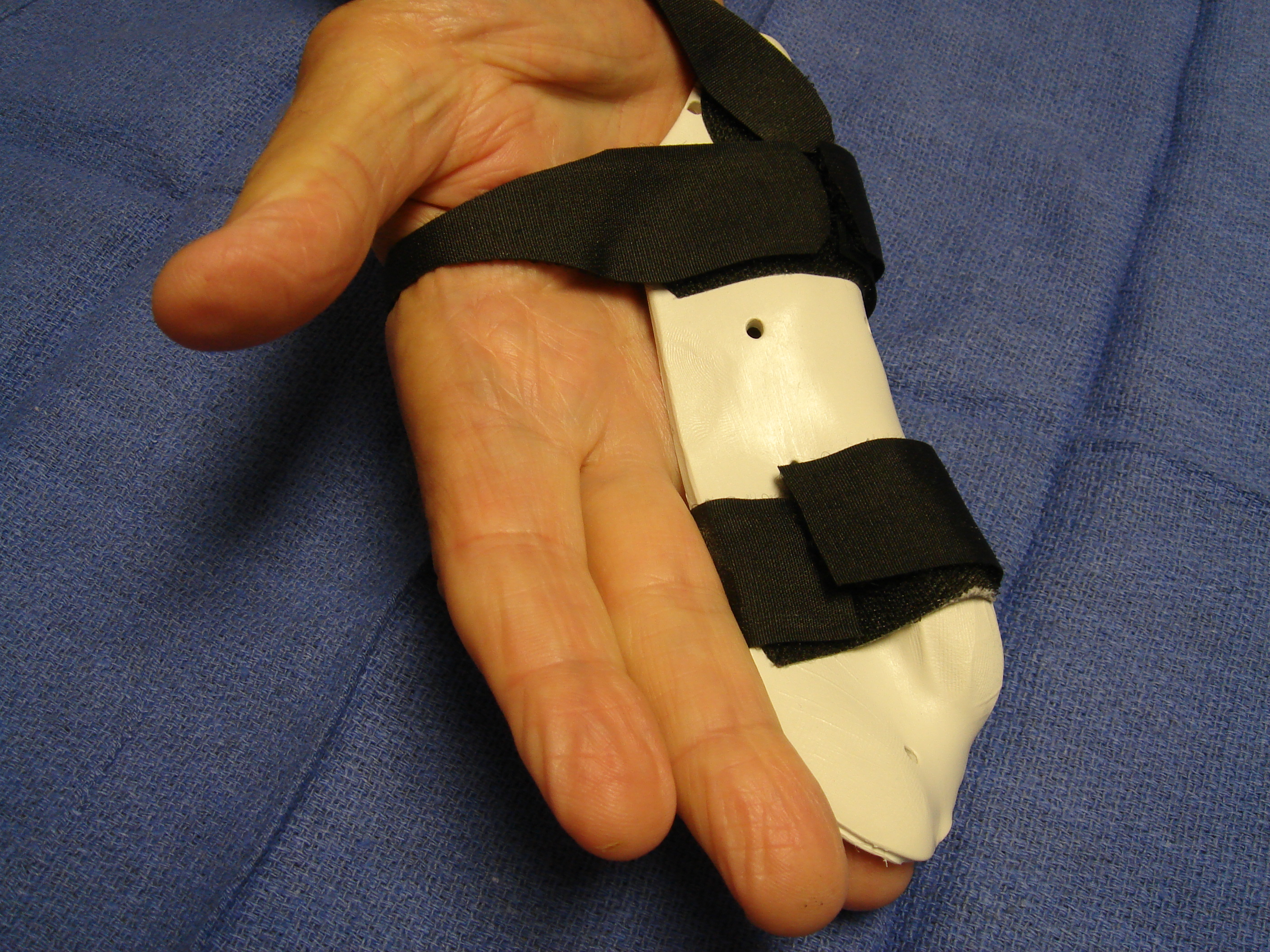 Figure 2d: These photographs illustrate the patient's hand 7 days post-enzyme injection. The custom thermoplastic night splint is shown; the palmar skin tear and MP crease bruise are healing.