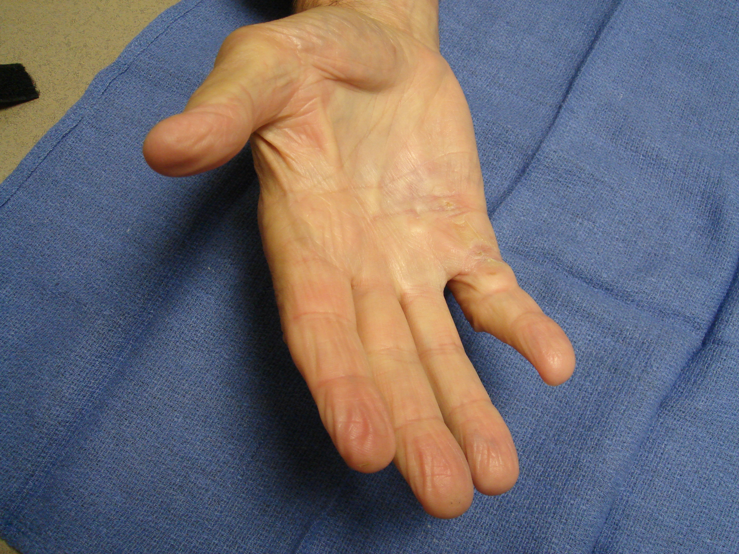 Figure 2e: At 90 days post-treatment he has full motion.