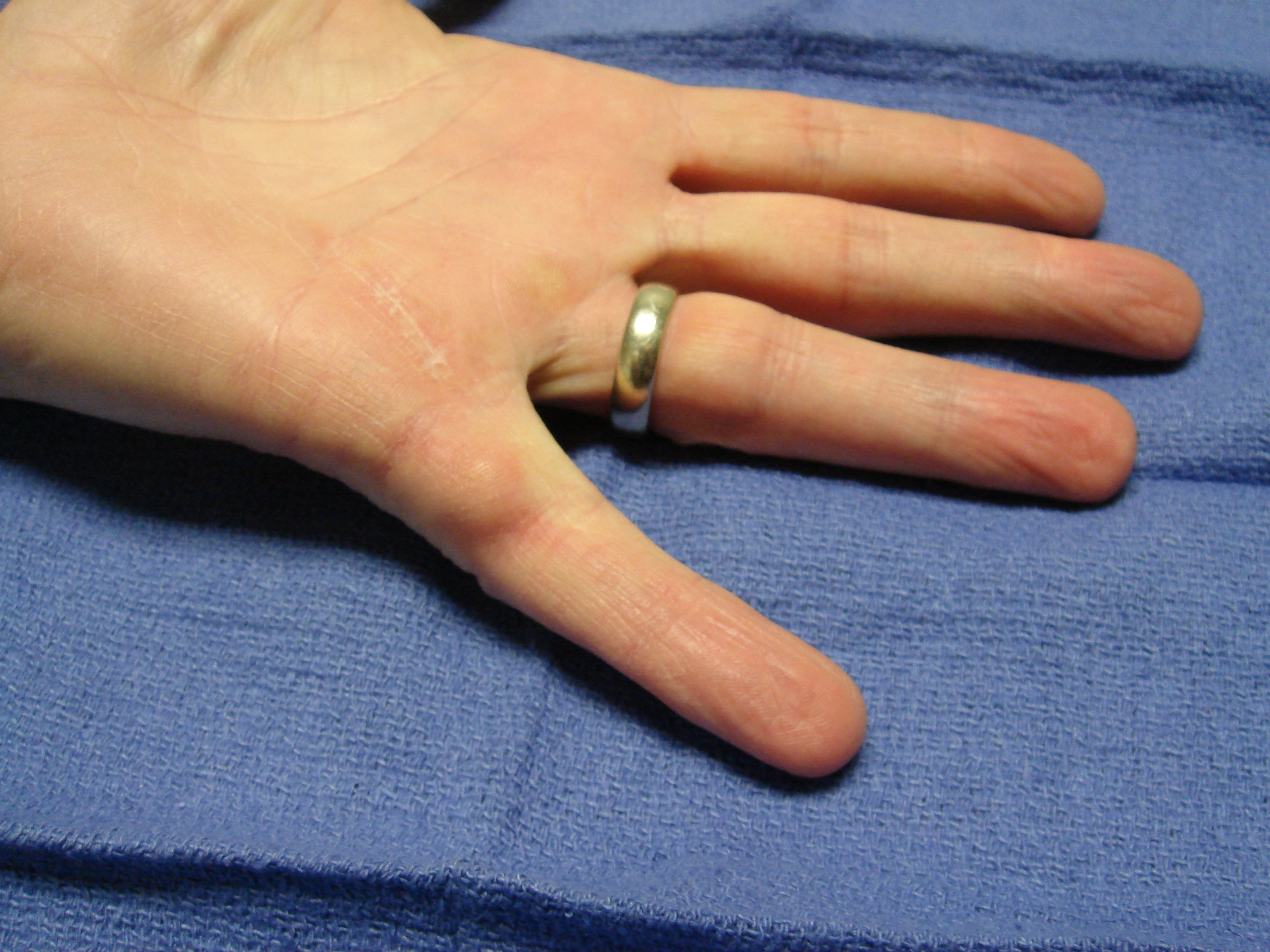 Figure 3d: Six months after collagenase treatment the patient maintains full active motion. A proximal phalangeal fascial nodule is seen slightly enlarged from pre-treatment; but there is yet no new contracture.