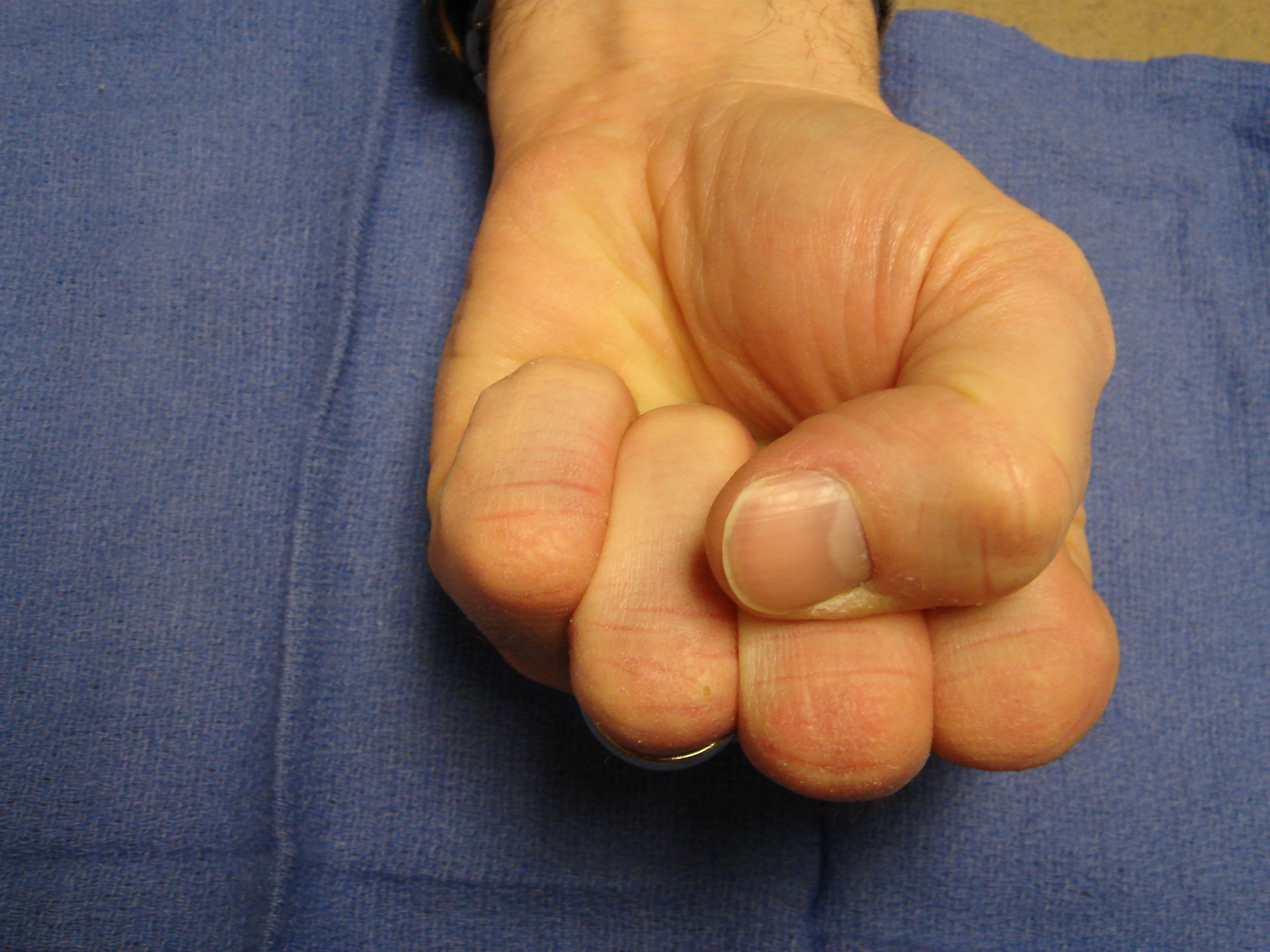 Figure 3e: Six months after collagenase treatment the patient maintains full active motion. A proximal phalangeal fascial nodule is seen slightly enlarged from pre-treatment; but there is yet no new contracture.