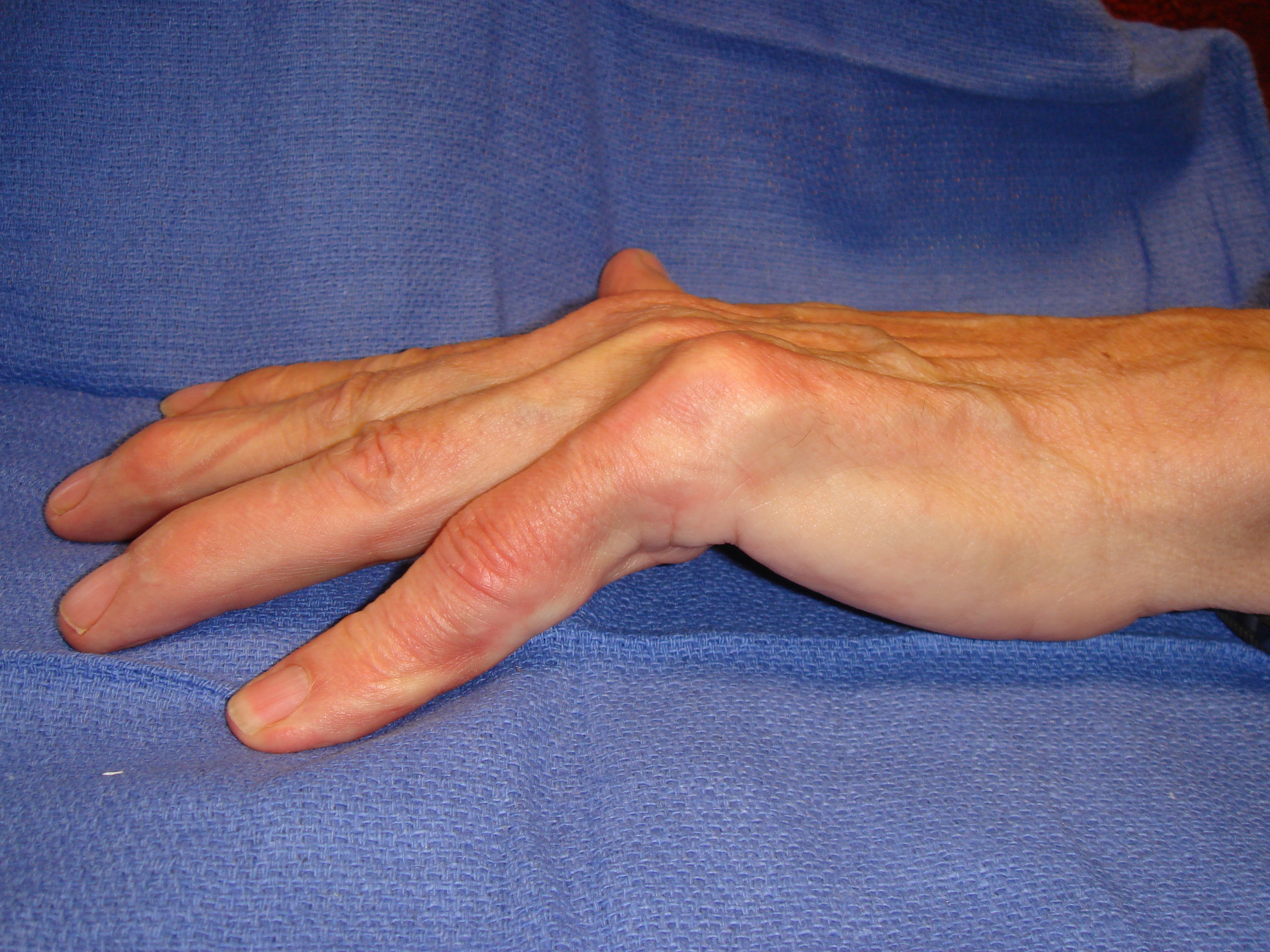 Image 4b: This ~70-year-old male had no family history of Dupuytren's. There is a problematic cord, seen primarily in the fifth ray and that crossed towards the ring finger web.