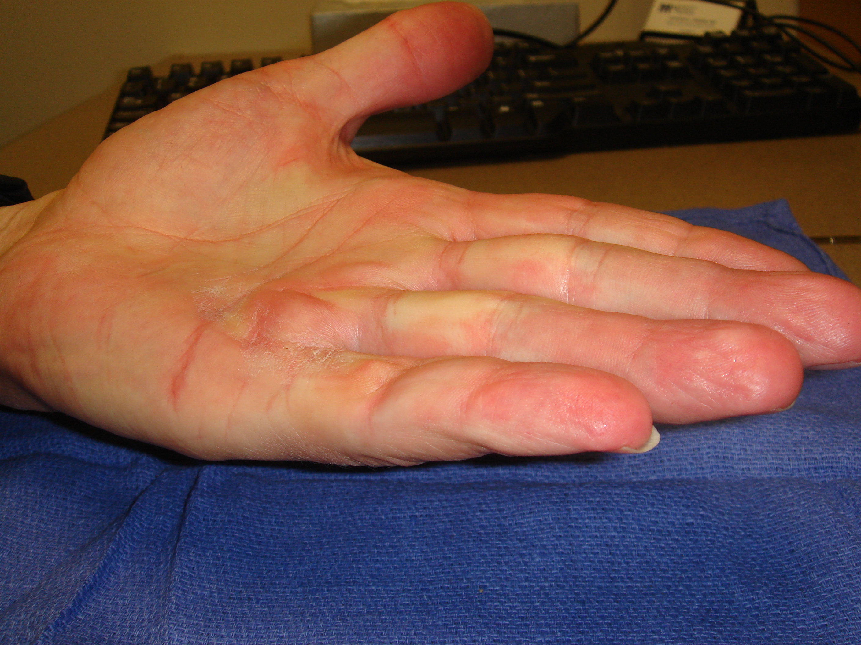 Figure 4e: He has full motion without cords or contracture 6 months post-collagenase treatment.