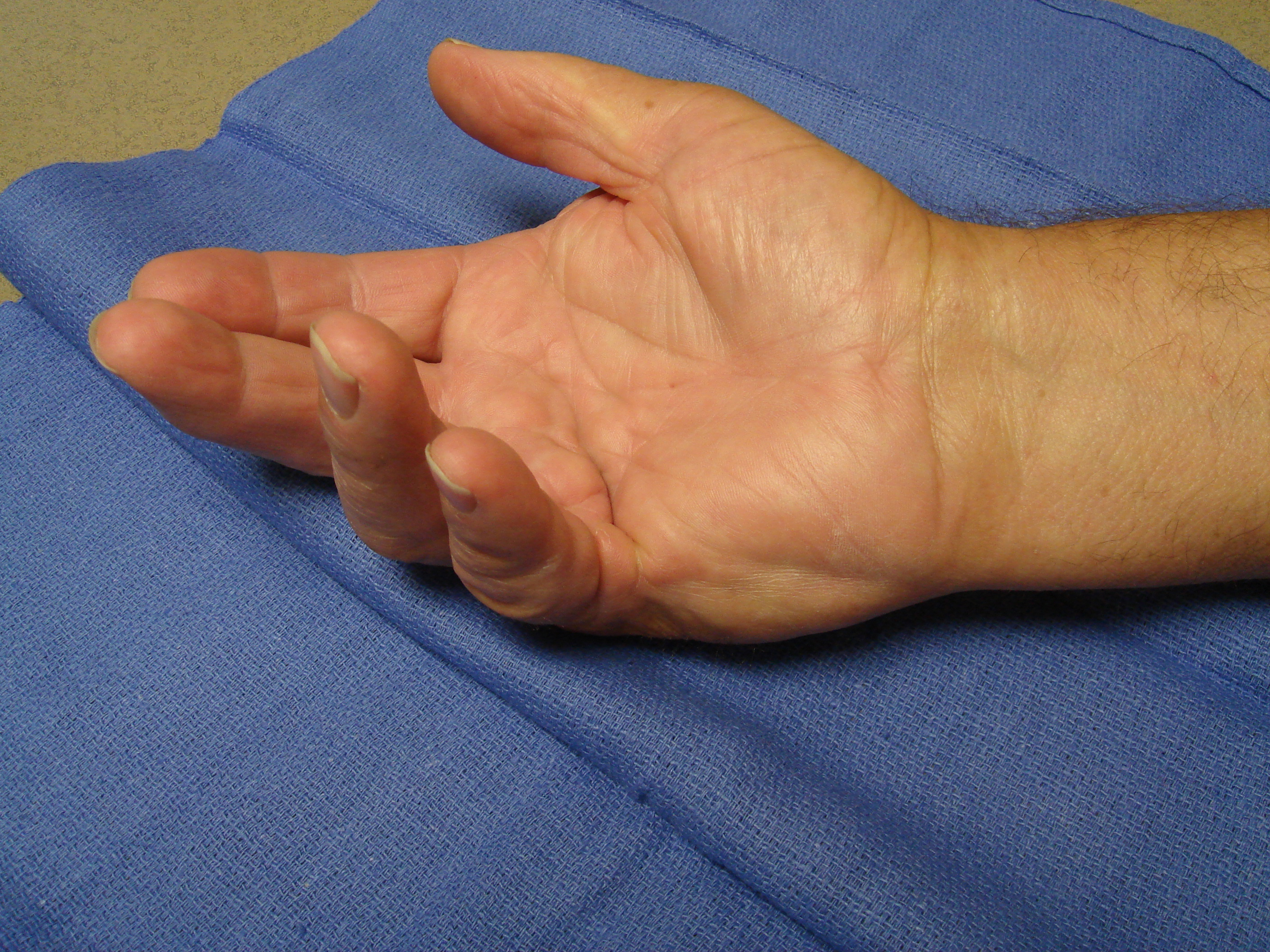 Figure 5a. The right hand of a 70-year-old man with significant, dysfunctional MP joint contractures of the ring and little fingers. He also had contractures of the contralateral left hand, but treatment was started for his dominant right side.