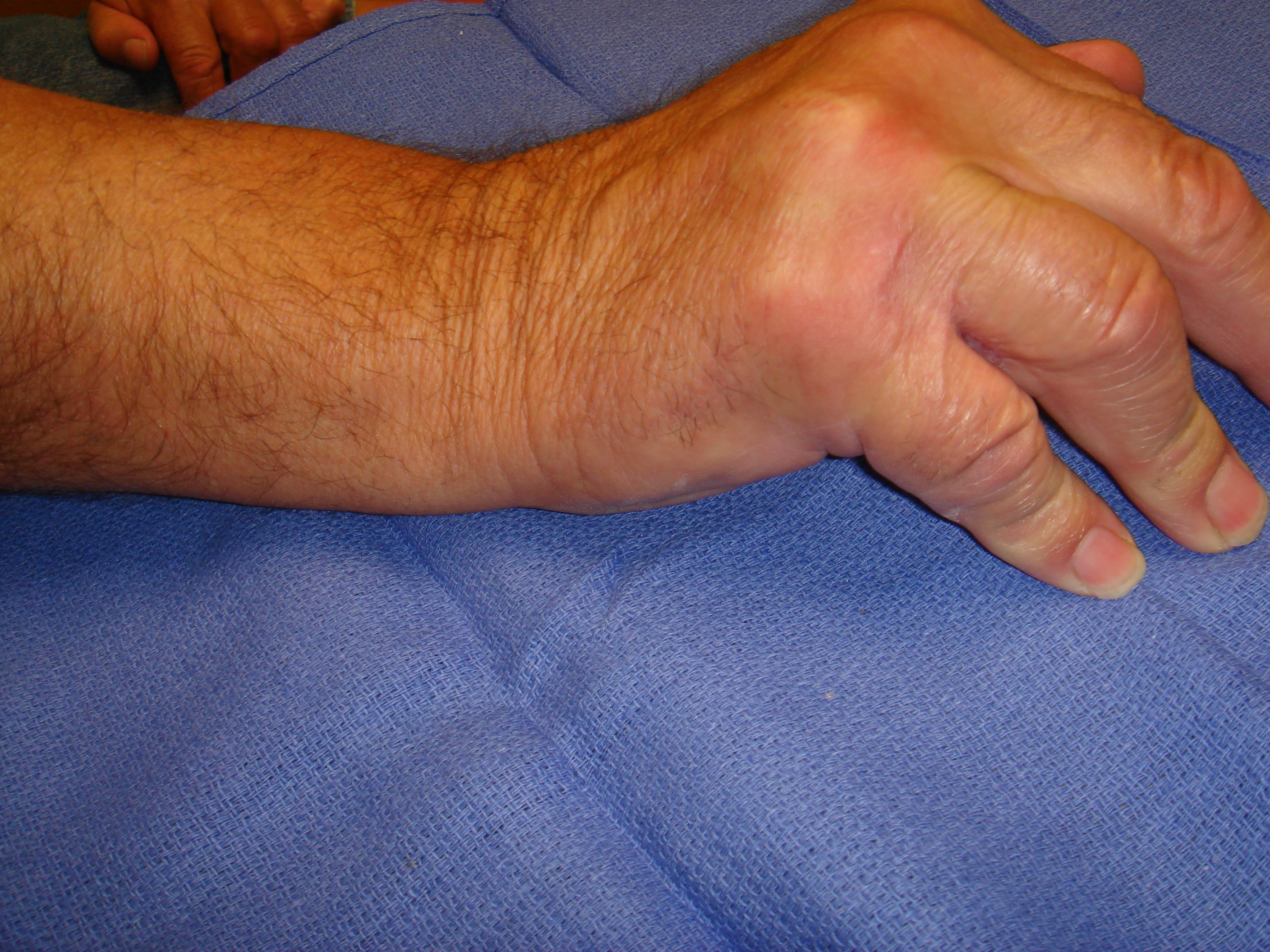 Figure 5b. The right hand of a 70-year-old man with significant, dysfunctional MP joint contractures of the ring and little fingers. He also had contractures of the contralateral left hand, but treatment was started for his dominant right side.