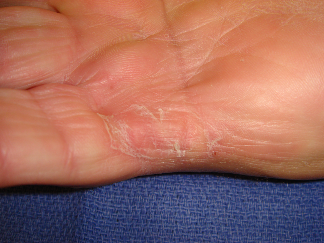 Figure 5c: Bruising and swelling have completely resolved and full motion is evident 6 weeks post-collagenase treatment.