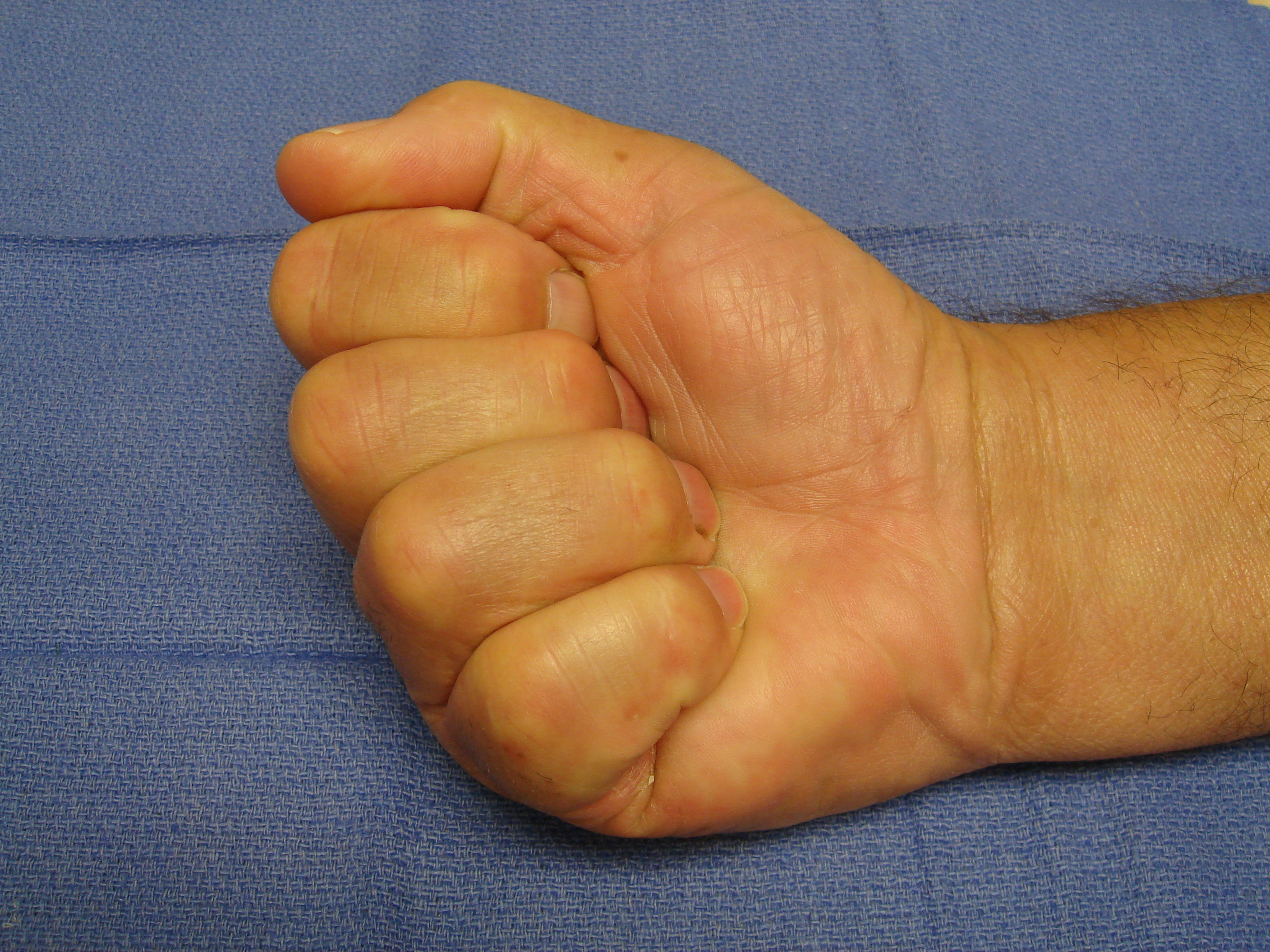 Figure 5d: Bruising and swelling have completely resolved and full motion is evident 6 weeks post-collagenase treatment.