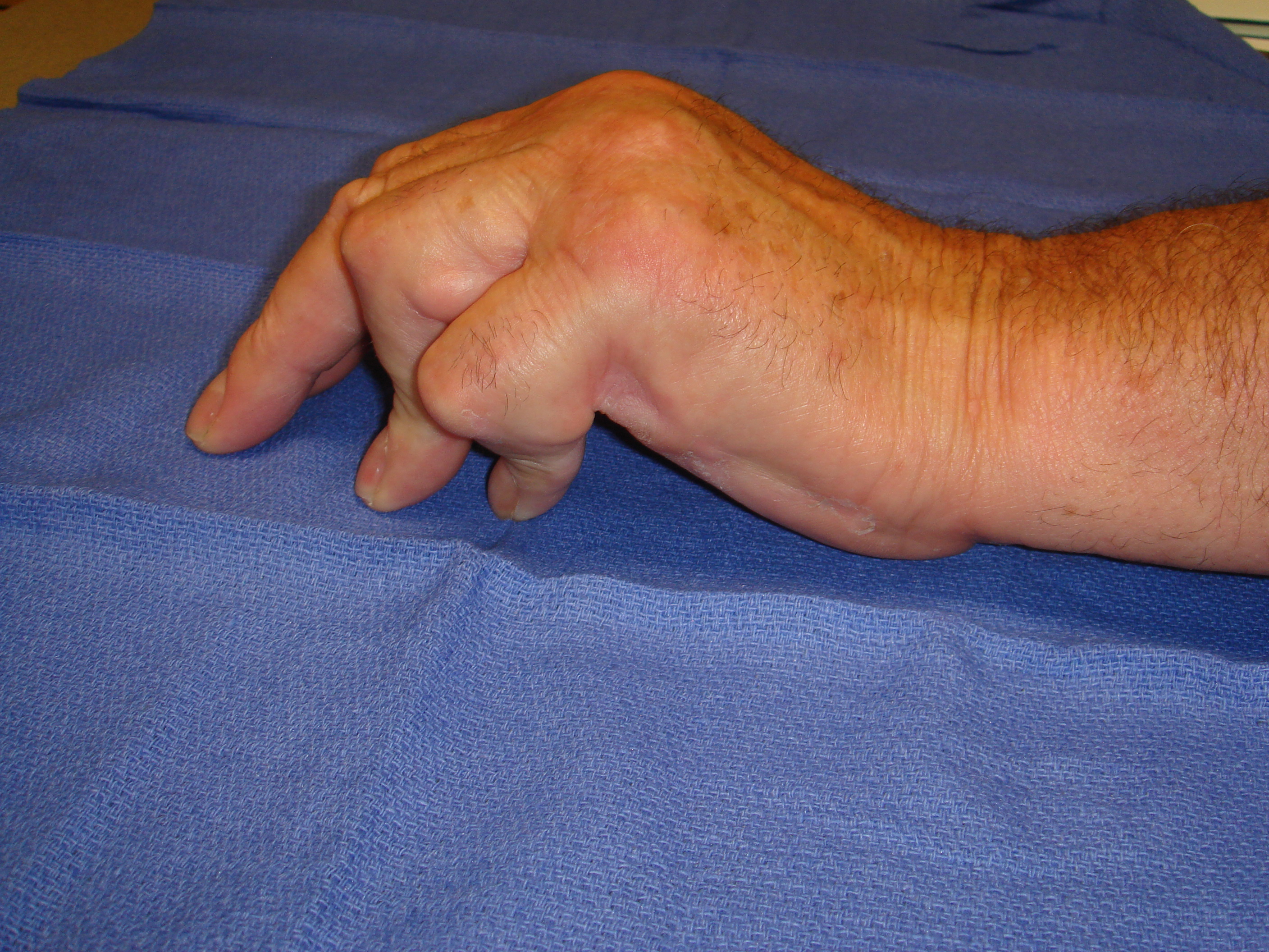Figure 6a: This patient has advanced post-surgical recurrence of Dupuytren's contracture affecting his left ring and little fingers. There is very limited active and passive ROM. The patient refused to have surgery again, despite dysfunction, but sought collagenase on the advice of a friend who was treated with CCH. Identifiable, palpable cords are present in addition to scar tissue; ultimately, more than 1 treatment cycle was going to be required; treatment started with the little finger.
