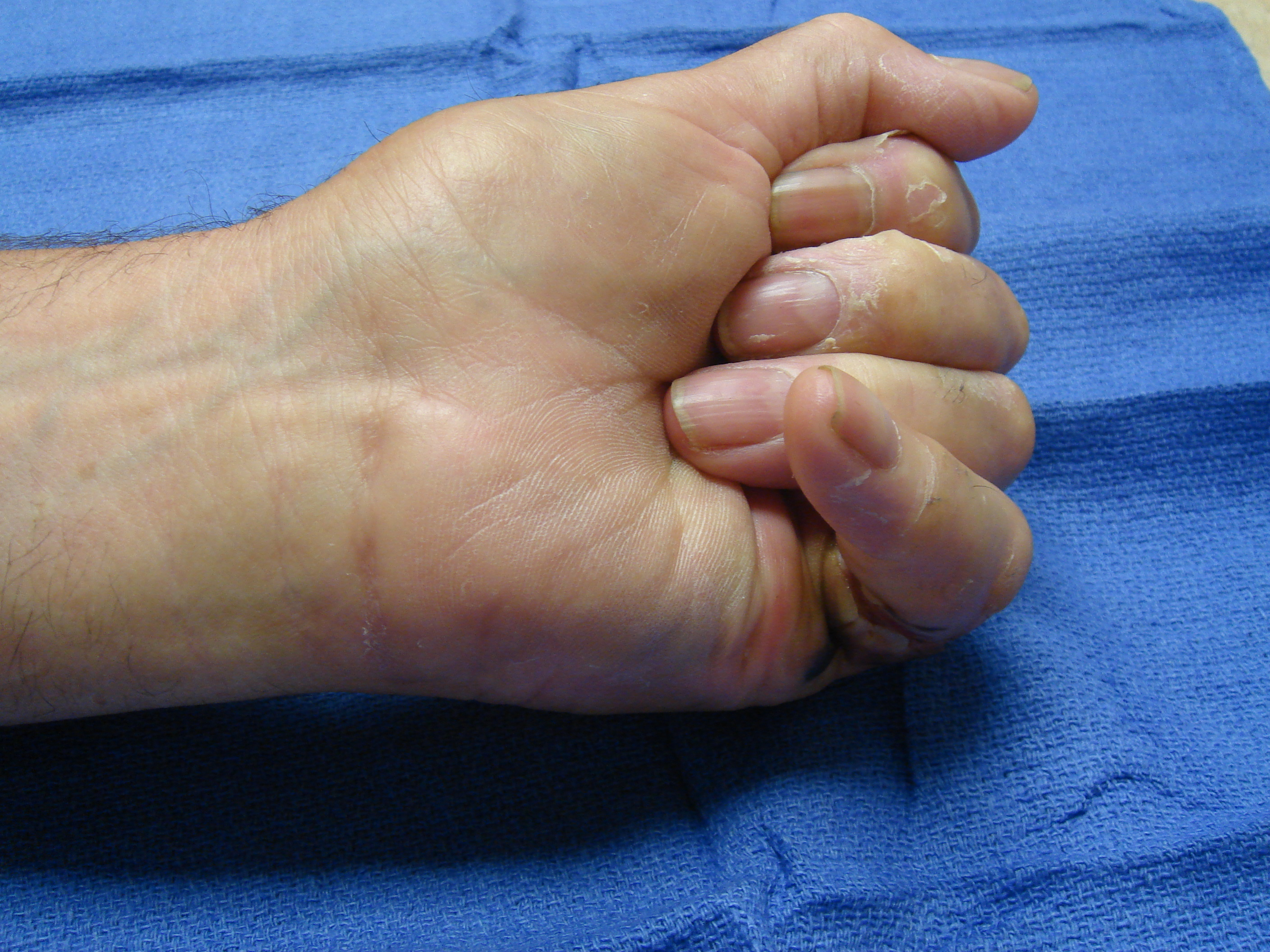 Figure 6f: Two weeks post-manipulation, the skin tear is granulating; he continues night MP+PIP extension splinting and has maintained active flexion.