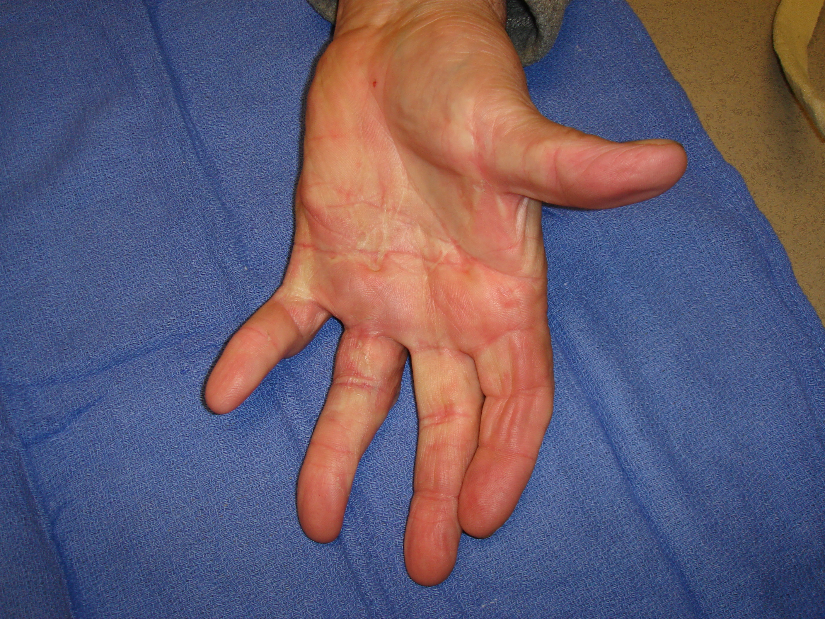 Figure 6i: These images were about 180 days after he completed his second collagenase treatment cycle that addressed the untreated/residual ring finger contractures. While some deformity persists, especially in the little finger PIP joint, he is quite functional and happy with his result.