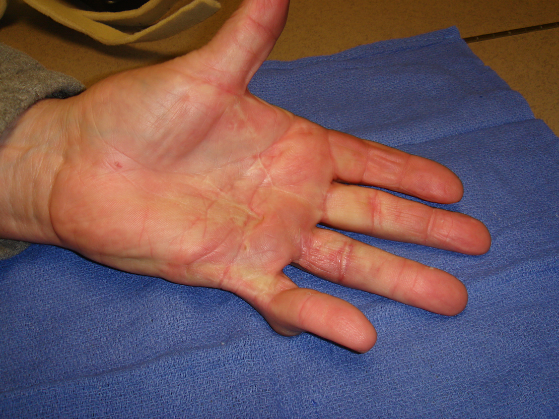 Figure 6j: These images were about 180 days after he completed his second collagenase treatment cycle that addressed the untreated/residual ring finger contractures. While some deformity persists, especially in the little finger PIP joint, he is quite functional and happy with his result.