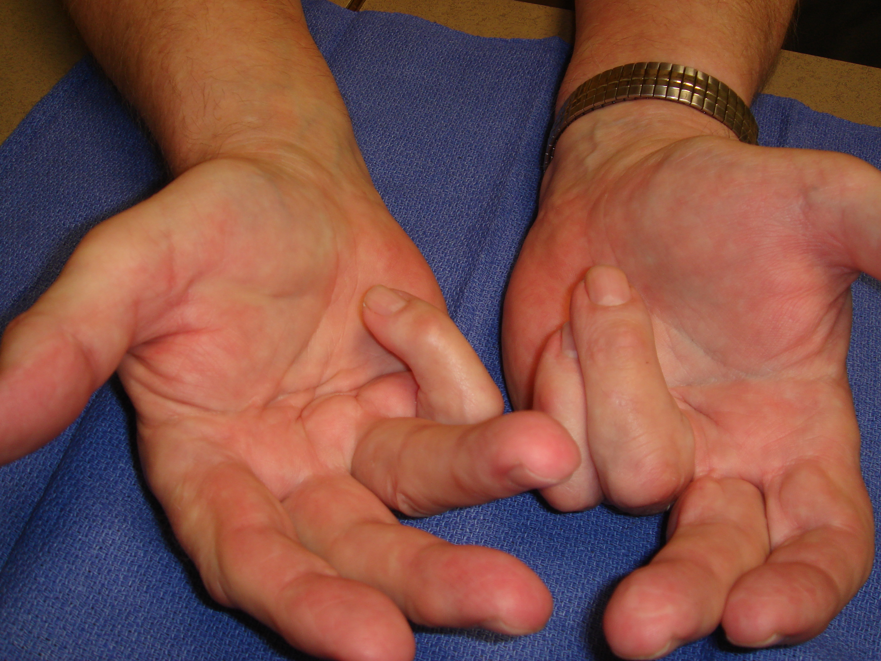 "Figure 7a: This 75-year-old man presented with bilateral fourth and fifth ray recurrences of Dupuytren's contractures 14 months after his second needle aponeurotomies in each hand. He had had the initial recurrences <9 months after the first procedures and recorded ""excellent"" corrections; the repeat needle aponeurotomies were also reported to have regained extension but also quickly recurred. He elected enzyme treatments beginning with his dominant right hand with the stated goal of being able to ""hold my wife's hand"" again."
