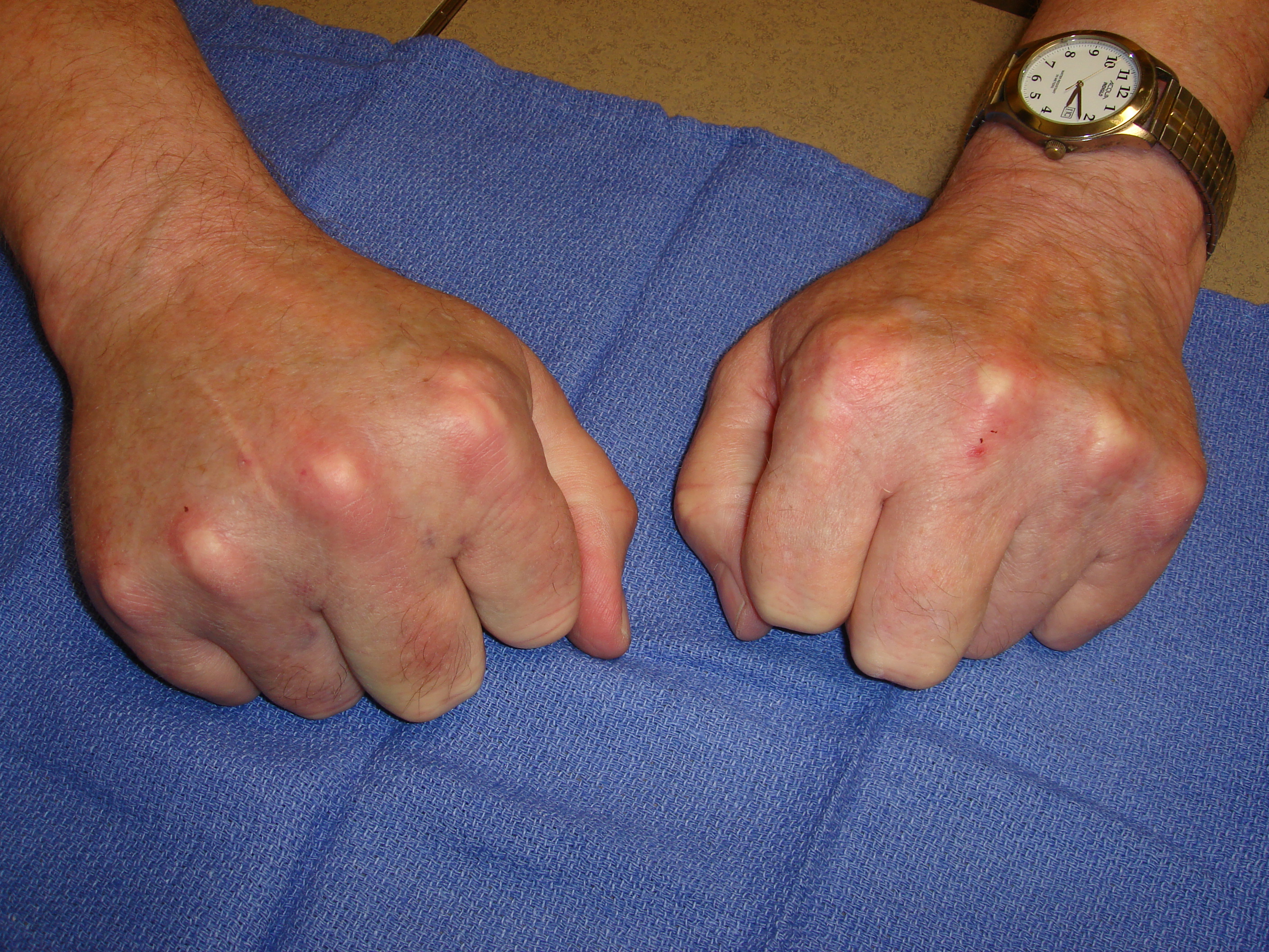 Figure 7b: At the 48-hour visit his right hand is minimally swollen; however, he also has mildly uncomfortable axillary bruising with enlarged nodes.