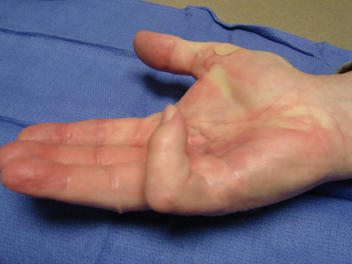 Figure 7d: The right hand 50 days later, with the second cycle of enzyme injection to begin for the little finger PIP and MP recurrence.