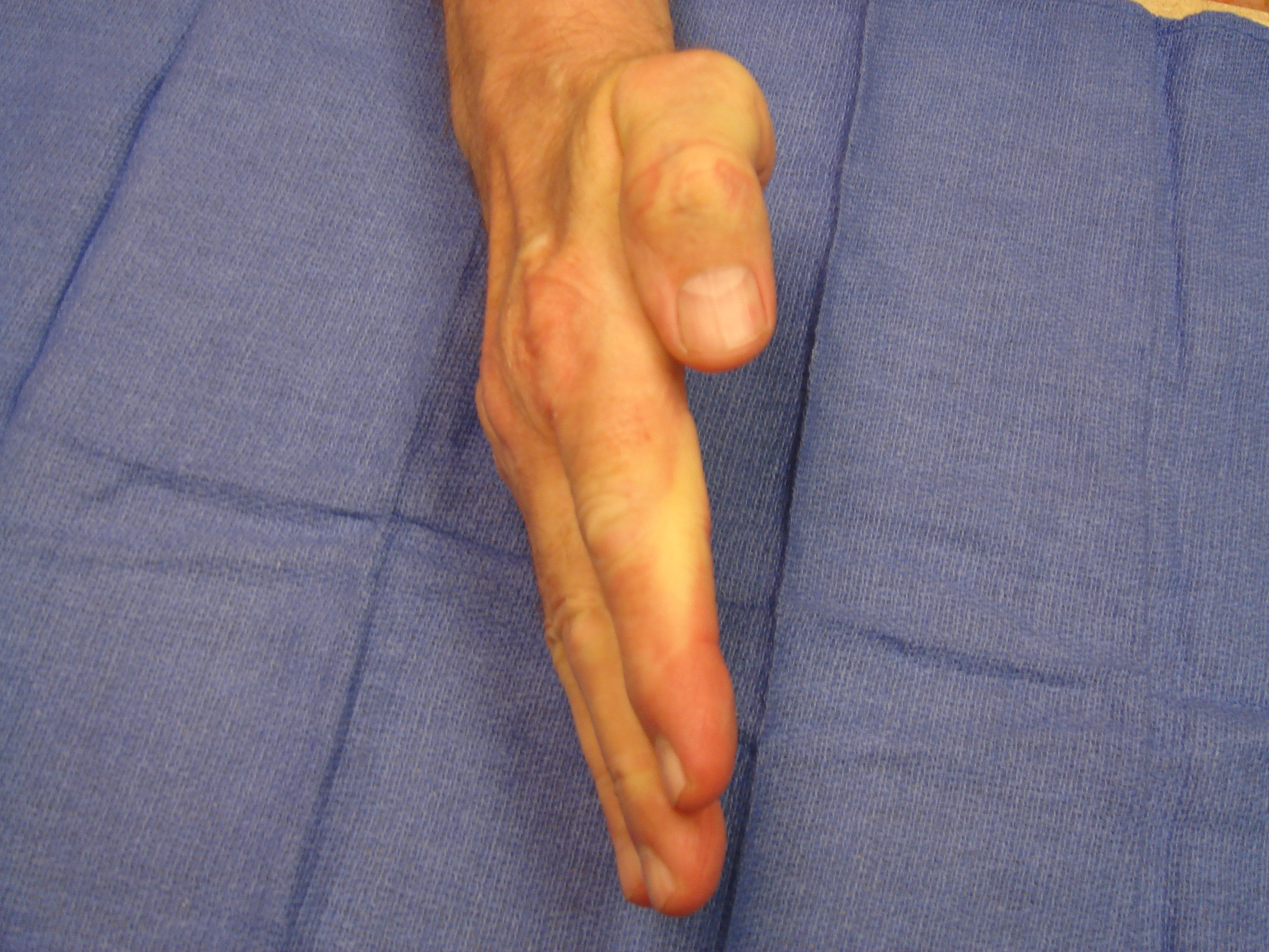 Figure 7g: One year after enzyme injection cycle #2 he has maintained finger correction and has useful active flexion (the little finger DIP joint is stiff from osteoarthritis). He reports holding his wife's hand whenever he wants.