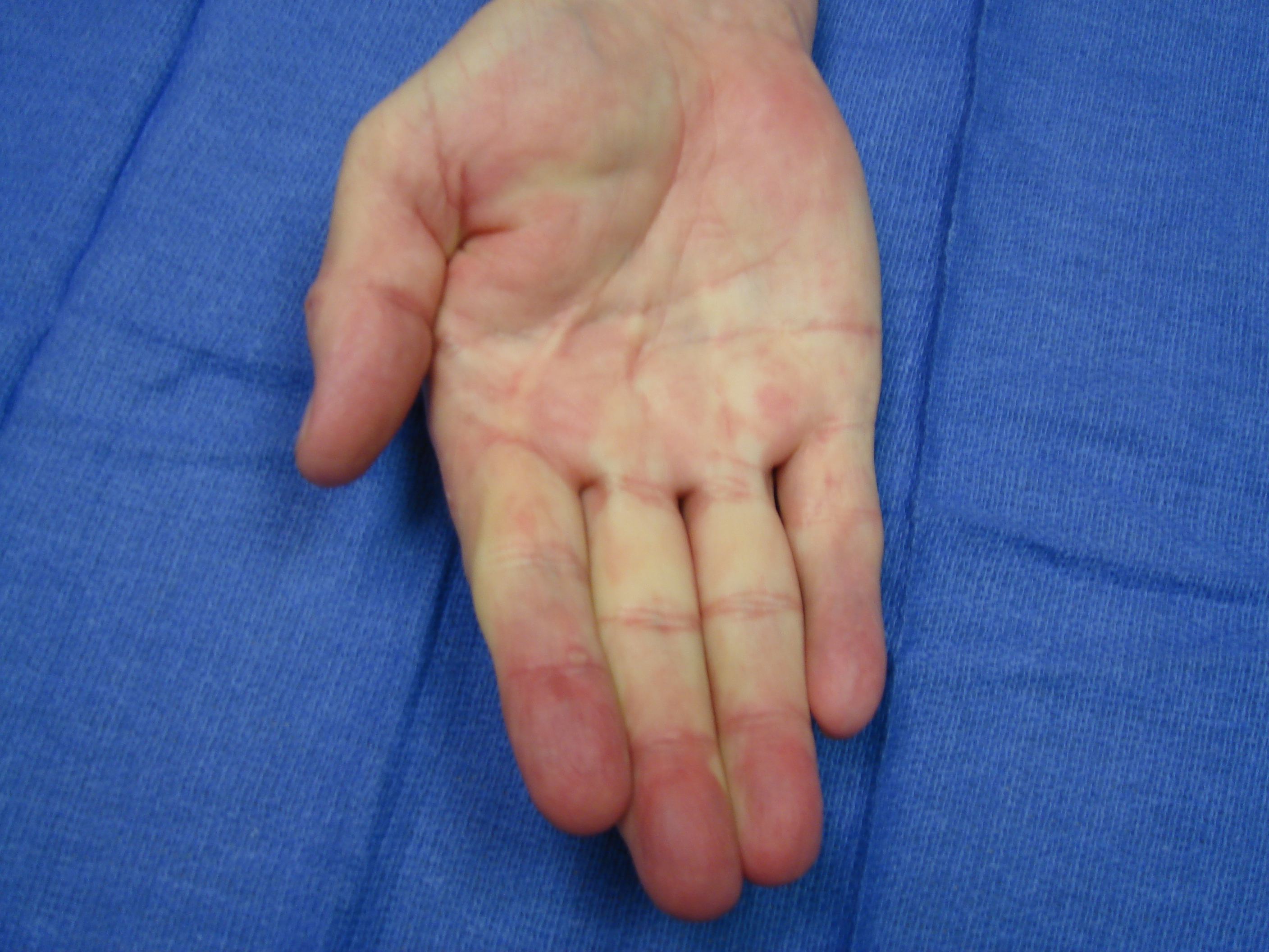 Figure 7h: One year after enzyme injection cycle #2 he has maintained finger correction and has useful active flexion (the little finger DIP joint is stiff from osteoarthritis). He reports holding his wife's hand whenever he wants.