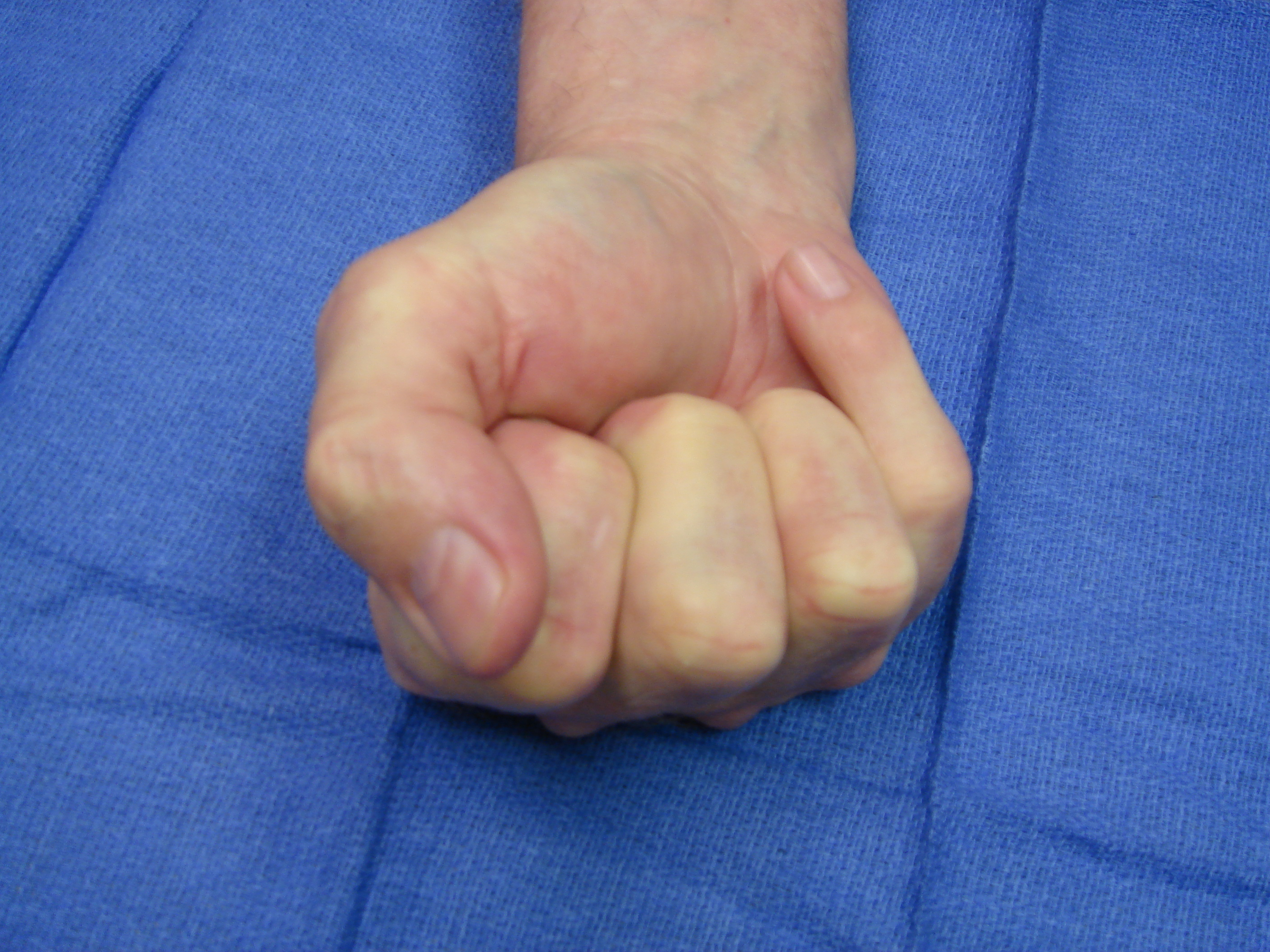 Figure 7: One year after enzyme injection cycle #2 he has maintained finger correction and has useful active flexion (the little finger DIP joint is stiff from osteoarthritis). He reports holding his wife's hand whenever he wants.