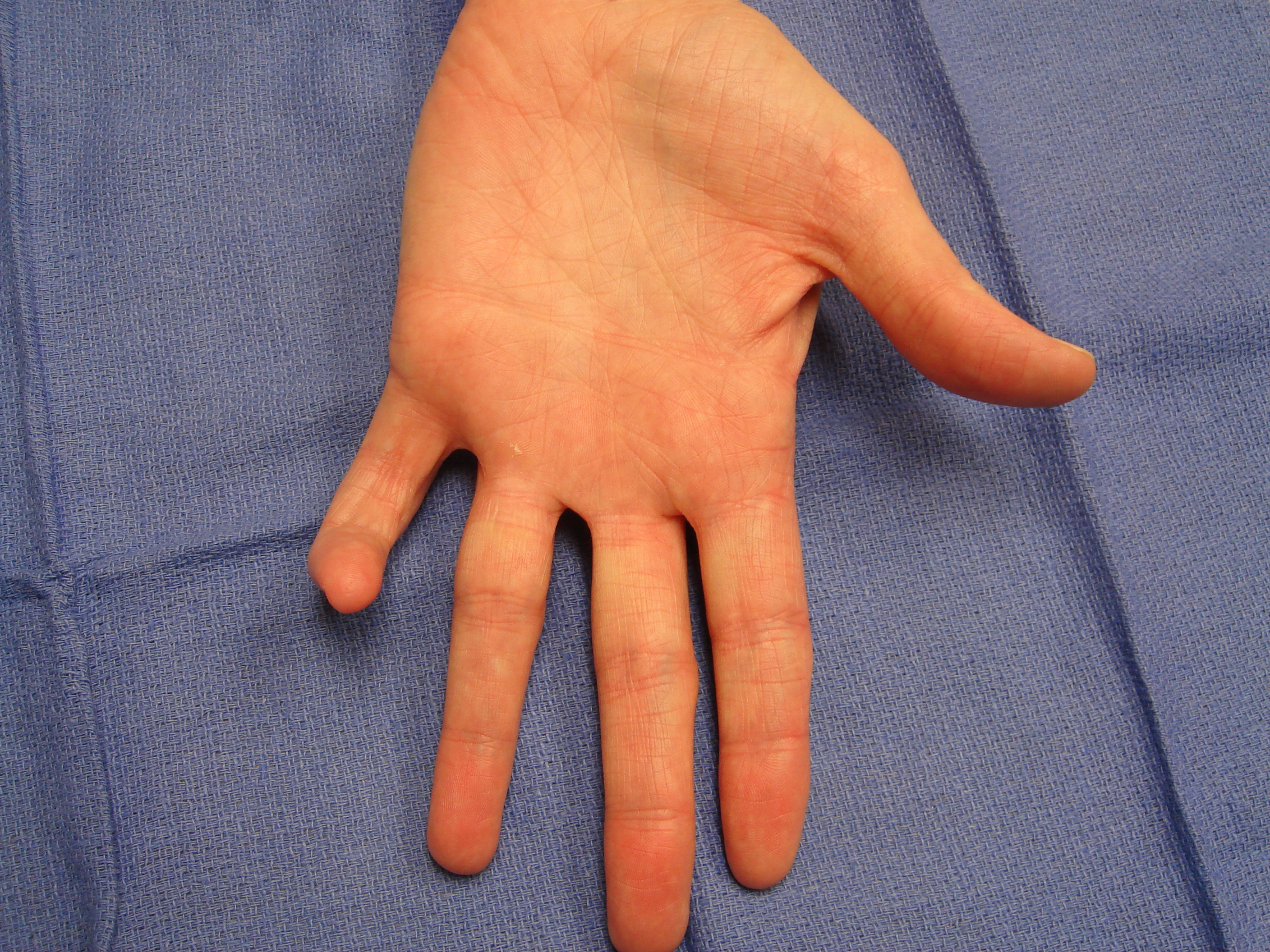 "Figure 8b: These images show a woman in her mid-50s with a significant, little-finger, combined (contiguous cord) PIP and DIP contracture. The MP joint was not affected. The injection and manipulation videos depict custom adaptation of the ""safe technique"" for such an unusual cases."