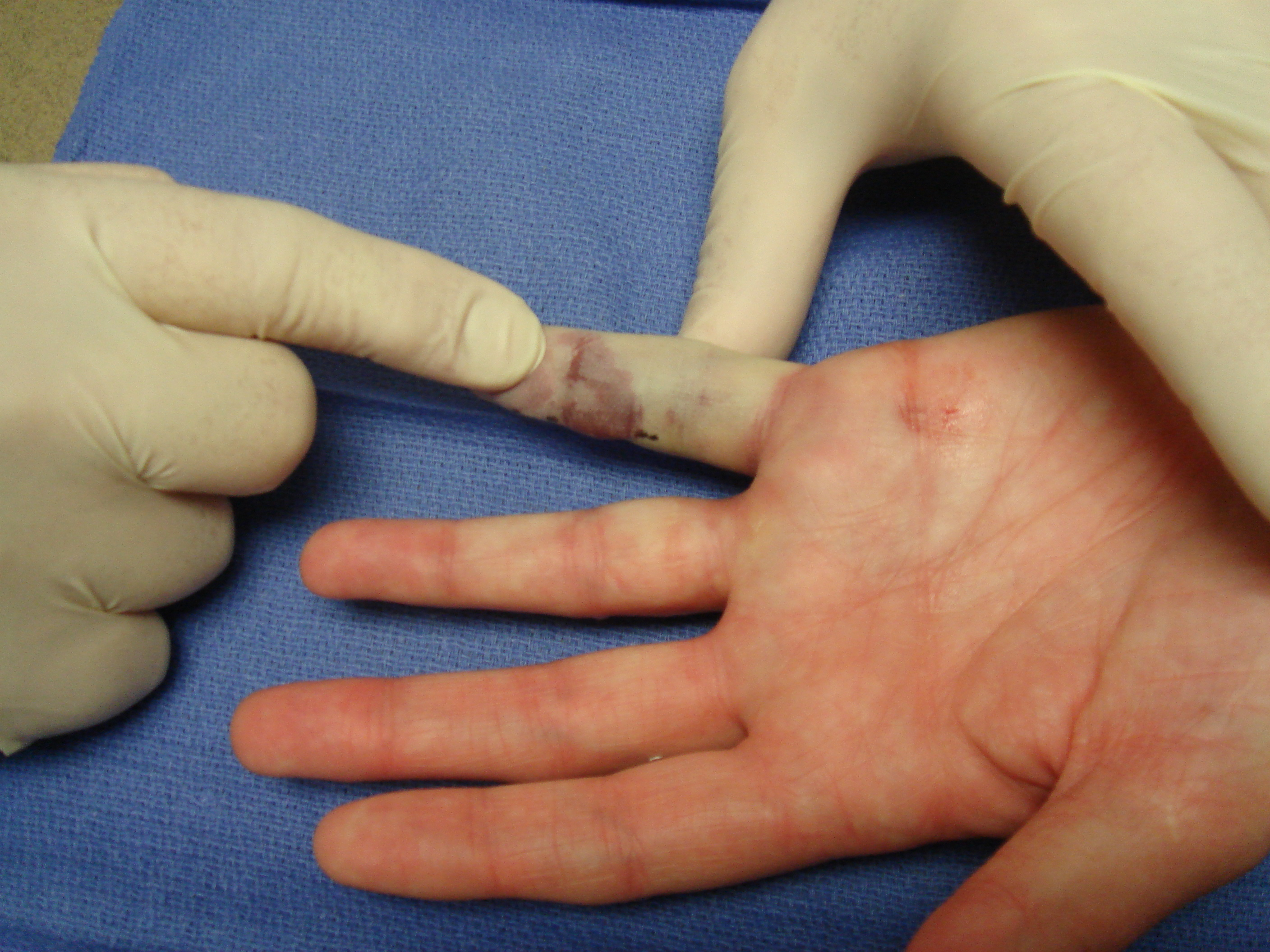 Figure 8c: Post-manipulation, fingers with interphalangeal contractures (and some others) are sometimes transiently but notably vasospastic, but this will resolve within minutes.
