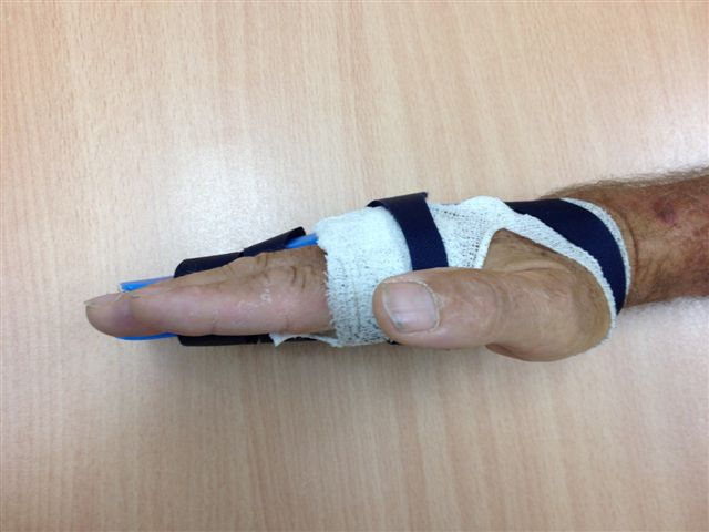 Figure 17a: The night splint